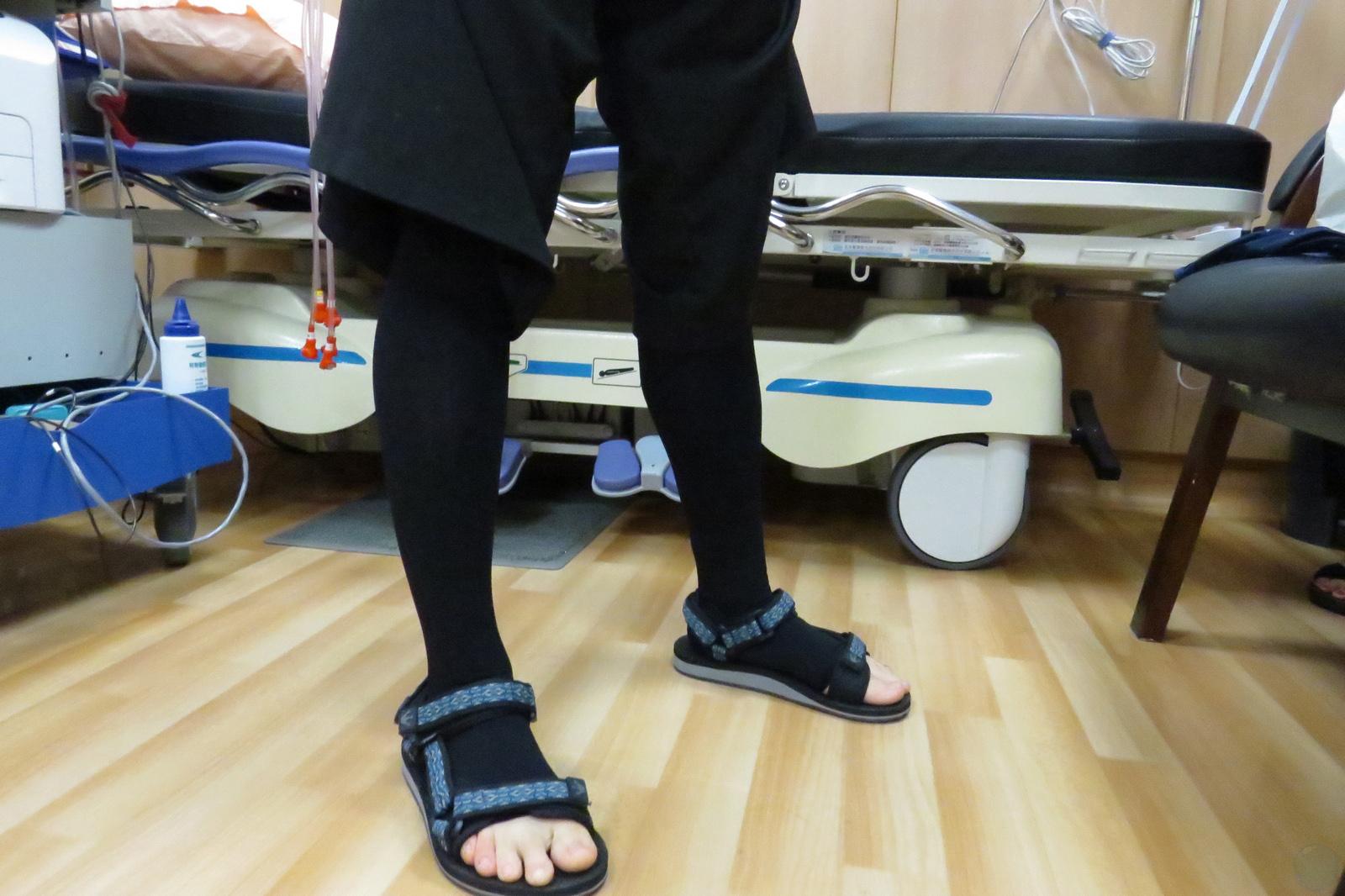 術後穿著彈性襪能預防靜脈曲張發生。