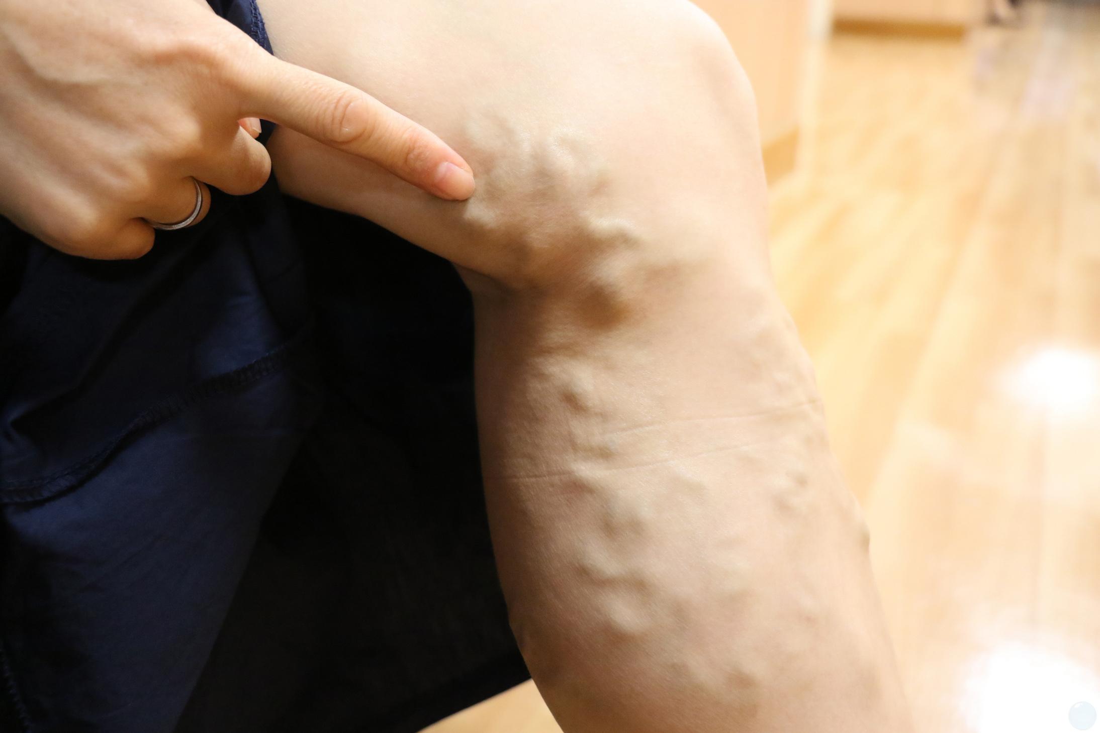 靜脈曲張又稱為浮腳筋。
