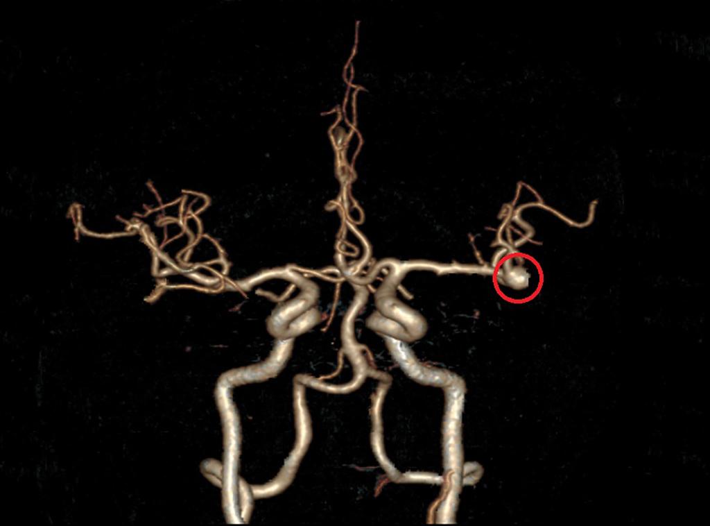 張先生電腦斷層掃描血管造影圖。