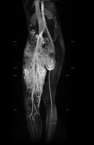 小班克右腿的動脈與靜脈是沒有經過微血管就直接相接的「動靜脈畸形」,兩腿間的動靜脈血管畸形腫瘤已成為拳頭大小,垂掛在兩腿間。