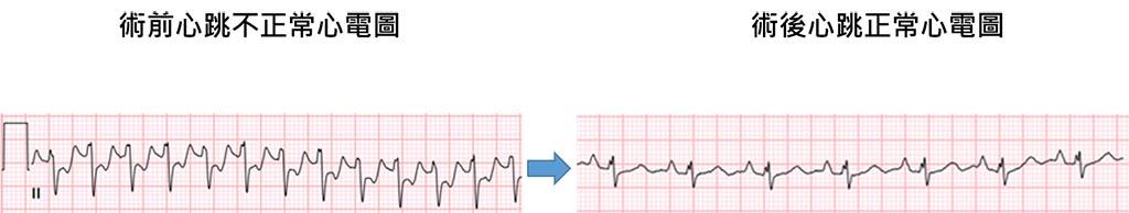 術前術後心電圖對照。